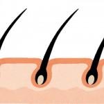 多毛症とは?治療法は?保険適用する?多毛症は遺伝するのか?