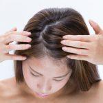 フケは嫌!頭皮の乾燥の原因と改善策。赤ちゃんの頭皮乾燥には?